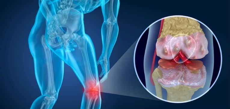 Artrosis Incapacidad Laboral ¿Invalidez Permanente Total o..